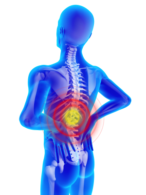 back injuries negative ions
